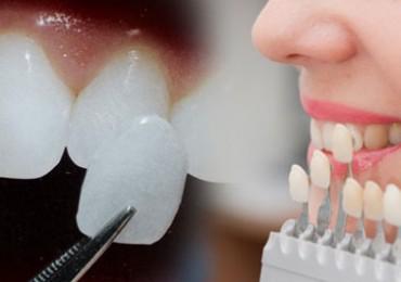 20 lik Diş Ameliyatı